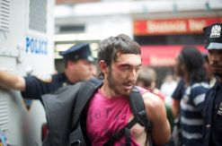 Protestor bleeding and shirt torn
