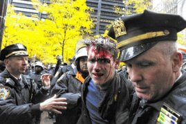 Occupy protester bleeding from head 2