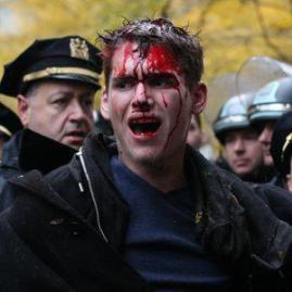 Occupy protester bleeding from head
