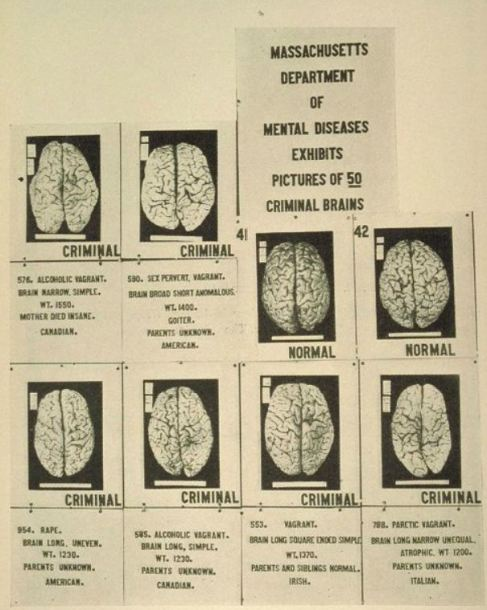 Massachusetts department of mental diseases exhibits pictures of 59 criminal brains