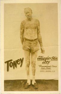 Toney, alligator skin boy, Dreamland Circus side show, Coney Island, with icthyosis a skin trait