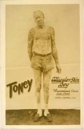 Toney, alligator skin boy, Dreamland Circus side show, Coney Island, with icthyosis a skin trait