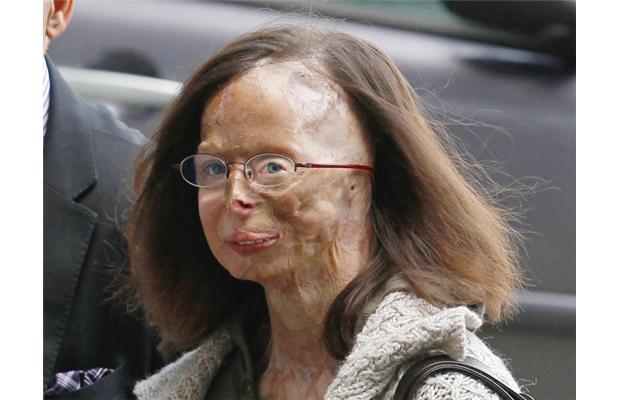 [Image: acid-in-face-scars-patricia-lefranc.jpg]