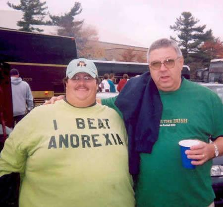 Overweight man wearing tshirt he beat anorexia