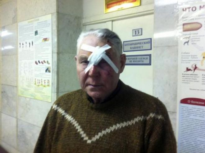 February 15, 2013: A man identifying himself as Viktor poses for a photograph after receiving treatment for injuries sustained from a shock wave that followed after a falling object was sighted in the sky in the Urals region, at an emergency room in a hospital in Chelyabinskk, Russia.Source: Reuters