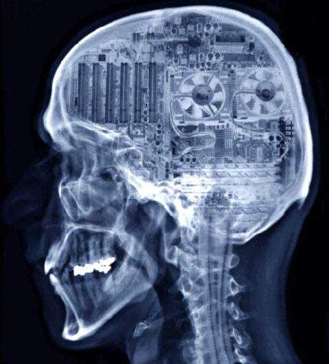 nerd brain xray